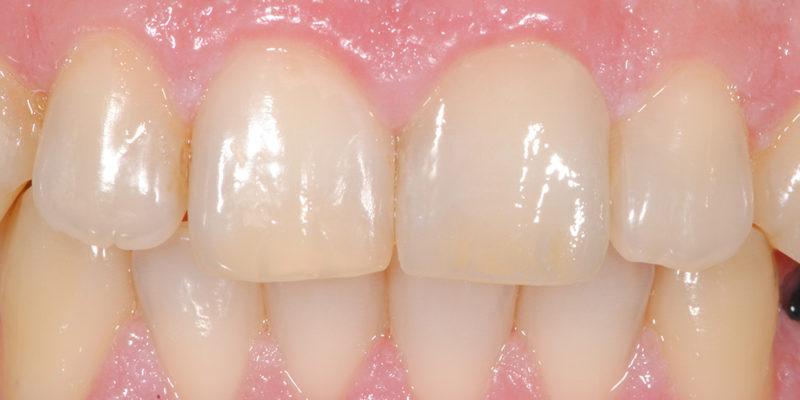 Faccetta estetica anteriore in ceramica-5