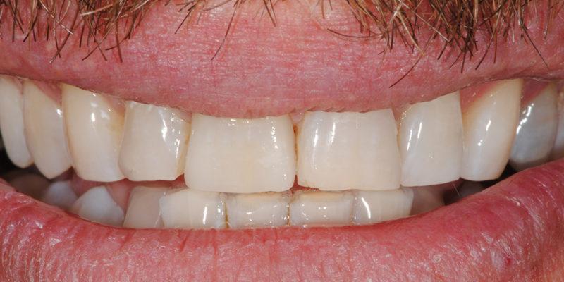 Faccetta estetica anteriore in ceramica2-5