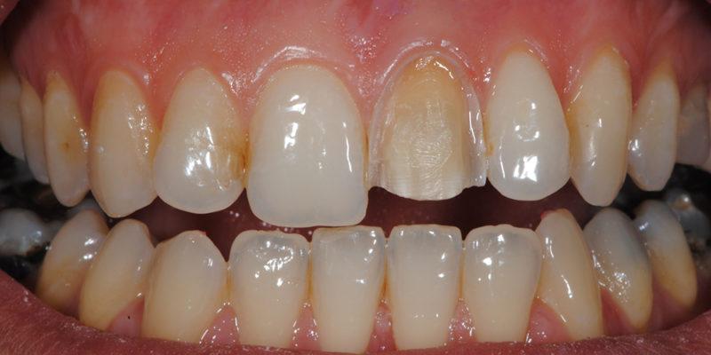 Faccetta estetica anteriore in ceramica3-3