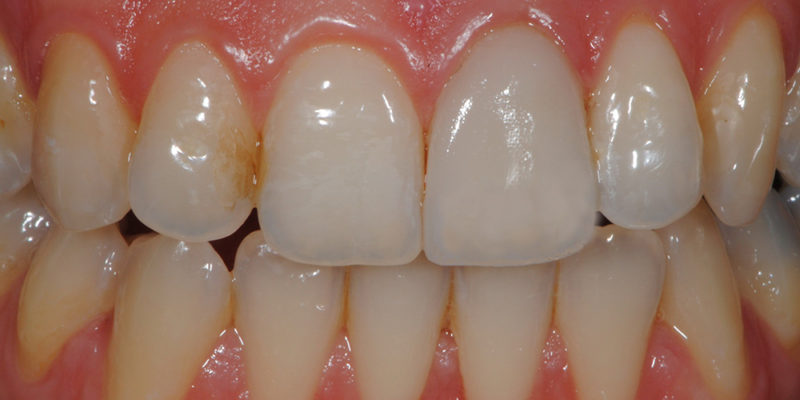Faccetta estetica anteriore in ceramica3-7