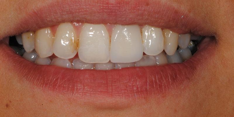 Faccetta estetica anteriore in ceramica3-8
