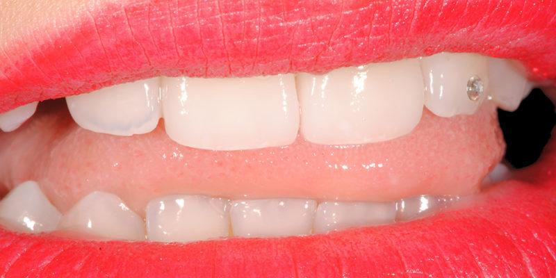 Ricostruzione di vecchie cure in composito su denti fratturati-7