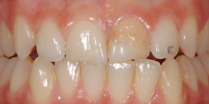 Ricostruzione di vecchie cure in composito su denti fratturati